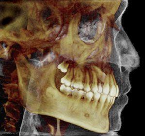 3d-dental-imaging