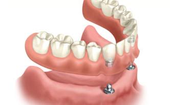dentiera