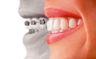 ortodonzia_invisibile_img1_big