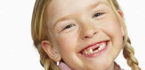 odontoiatria pediatrica - apparecchi bambini