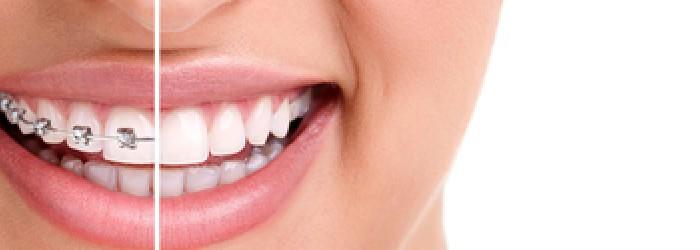 ortodonzia-1000x250