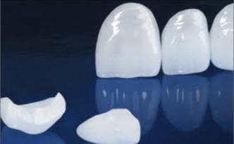 a_faccette-dentali